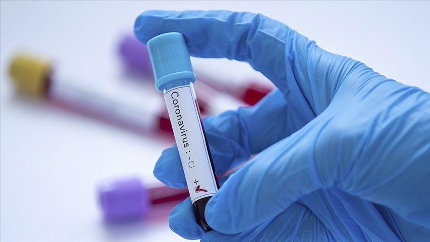 Coronavirus, Mercredi 28 Avril 2021: 56 cas positifs, 10 graves, 150 sous traitement…